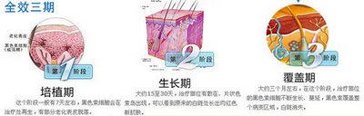 中医治疗白癜风的方法有哪些