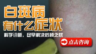 武汉白癜风的病发症状主要是什么呢?