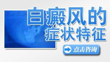 武汉白癜风的晚期症状是什么样的?
