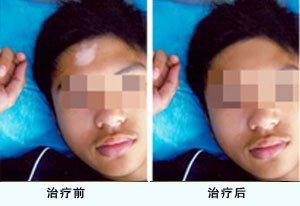 武汉青少年患白癜风能治疗好吗?