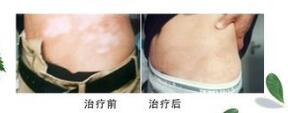 武汉如何治疗腹部白癜风?